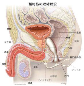 前立腺マッサージ器具が肛門に挿入されているイラスト